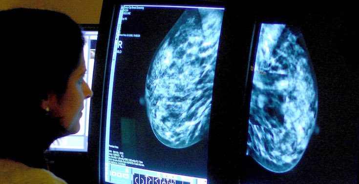 Just a third of women in their 60s undergo full NHS cancer screening